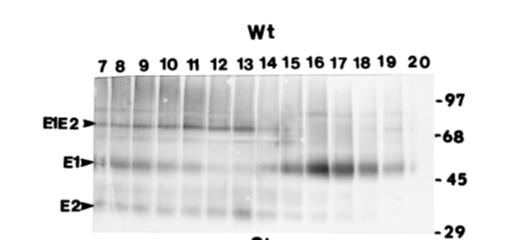 超越模仿,创新跨越系列III ——全球首发独家新型风疹重组抗原!